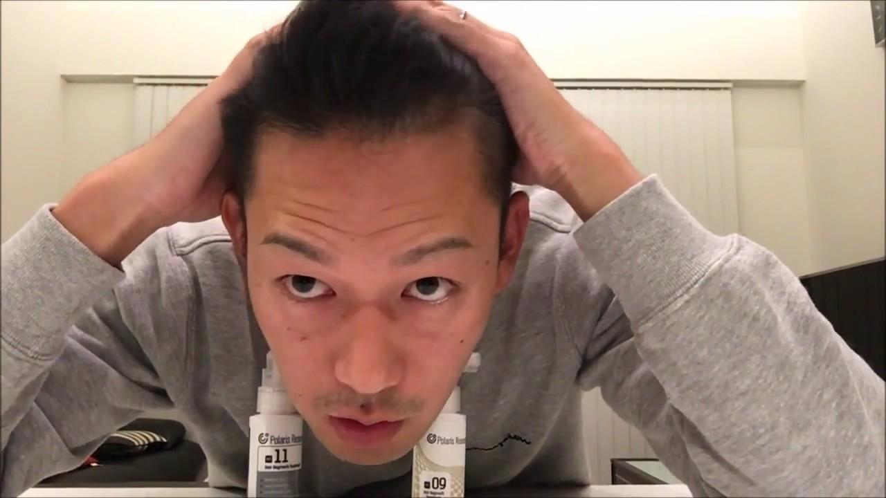 宮迫博之の髪型はハゲを克服したとは思え ...