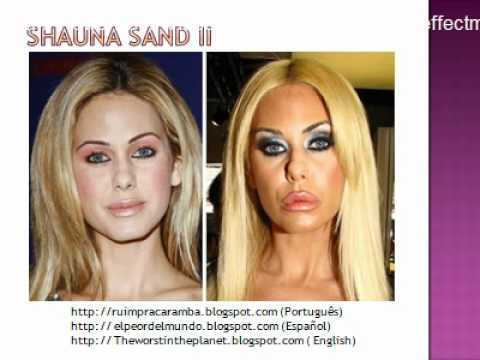 The 27 Most Extreme Celebrity Plastic Surgeries Of All Time