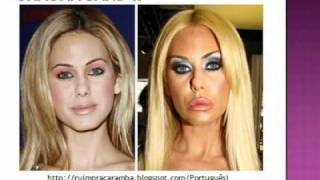 27- Plastic Surgery Fail (before after) 27 - Cirurgia Plastica - Antes Despues  - youtube thumbnail