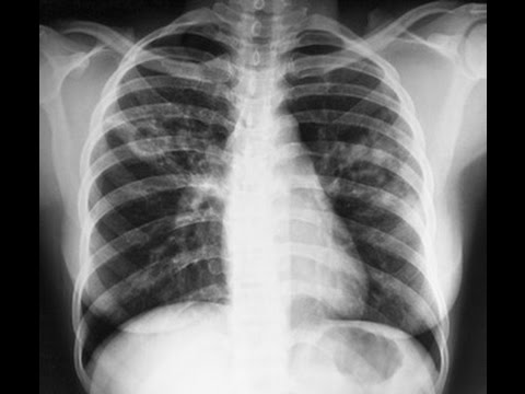 Туберкулёз — Википедия