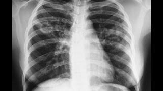 видео Формы и виды туберкулеза легких
