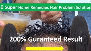 6 Super Fast Home Remedies \ Hair Growth | Hair Fall - 200% Guaranteed Result 2018