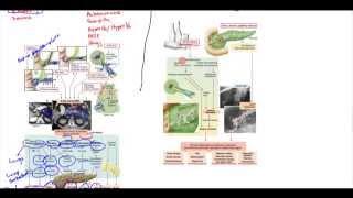 Acute Pancreatitis, Chronic Pancreatitis, Psuedocyst, Adenocarcinoma
