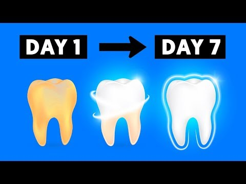5 Simple Life Hacks For Teeth Whitening At Home