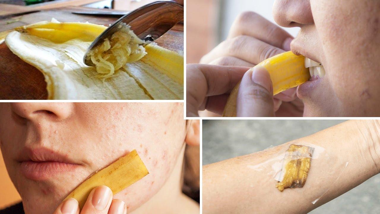 9 Unusual Uses For Banana Peels