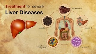 Liver- Treatment for severe liver diseases (Facts about liver diseases)