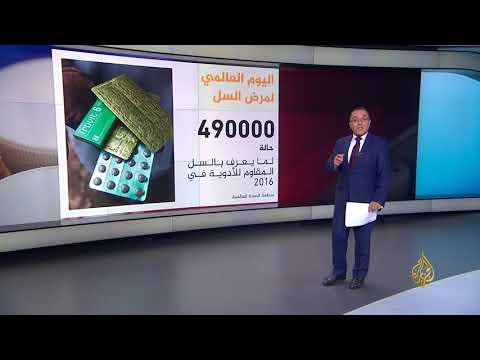 اليوم العالمي للسل.. محاصرة المرض  - نشر قبل 18 دقيقة