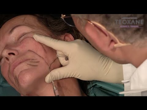Dr Sebagh demonstrates threads & fillers at Teoxane Ways of Beauty Part 3 of 3 - 9th May 2015