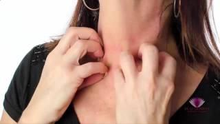 Photos de l'allergie de la peau - Signes, symptômes, photos, images, photos de l'allergie de la peau