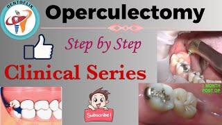 Operculectomy || Step by Step || Clinical Series screenshot 4