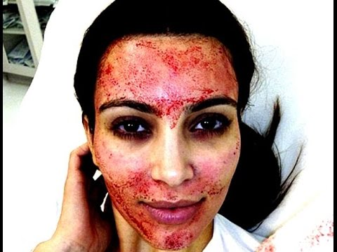Vampire Facial Celebrity Beauty Treatment