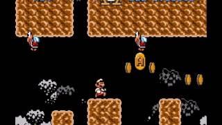 Super Mario Omega - 14 - Xi