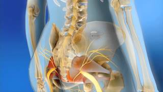 Medtronic Sacral Neuromodulation