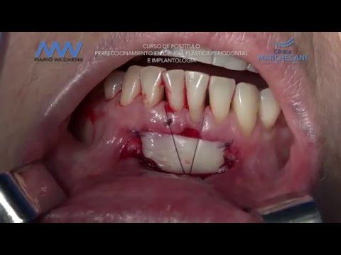 Que es la cirugia plastica periodontal