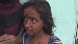 """يمنيون في الحديدة.. حياة رمضانية بلا ترف """"الكهرباء"""""""