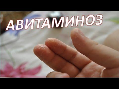 0 - Злазить шкіра на пальцях рук