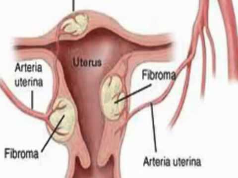 Como se curan los miomas en el utero