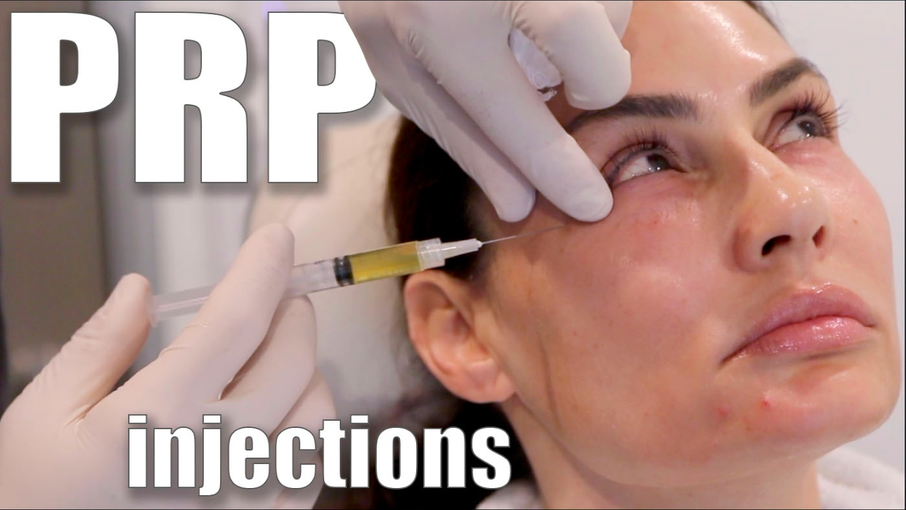 PRP Facial Treatments are the Future of Beauty