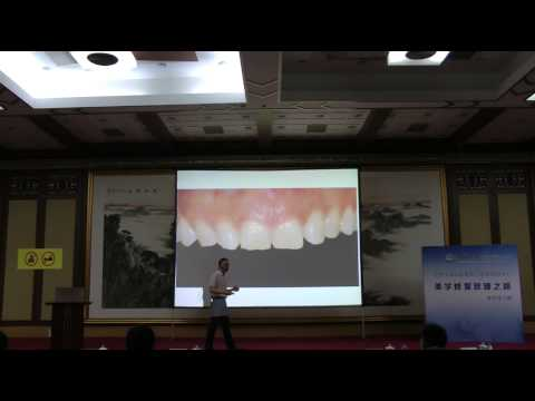Dr Liu Feng (Beijing University) Comfortable Cosmetic Dentistry
