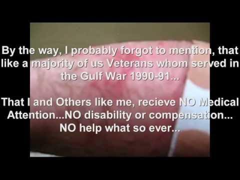 "GULF WAR ILLNESS ""The Daily Life of a Veteran"""