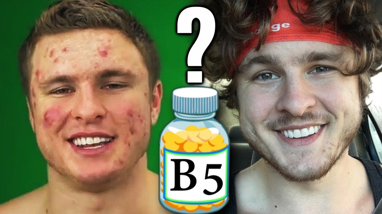 Vitamin B5 The Secret To Clearing Acne Youtube