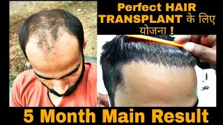 How to Grow Hair only in 5 Month by Hair Transplant Surgery in DELHI