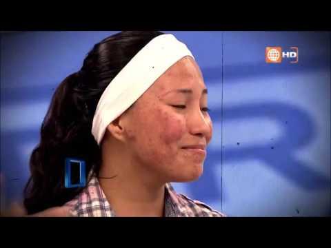 Acne: Tratamiento efectivo, el Antes y Despues de Tania - Dr. TV