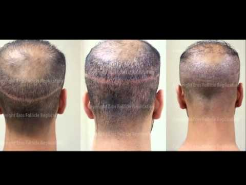 Eros Follicle Replication Hair Transplant Scar Cover Up Before And