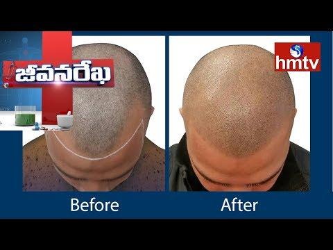 Hair Transplantation   KIMS Hospital   Jeevana Rekha   hmtv