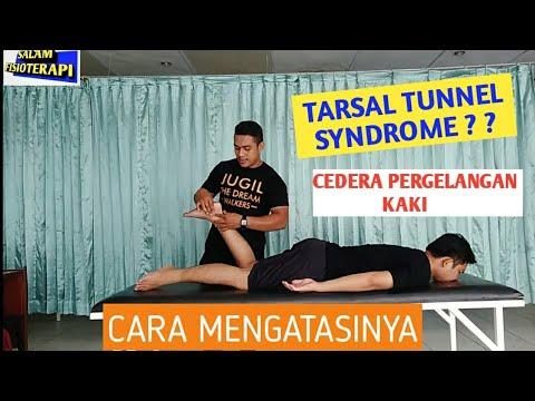 Terapi Latihan pada Kasus Carpal Tunnel Syndrome (CTS).