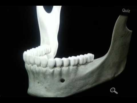 Mandible Bone 3D Anatomy - YouTube