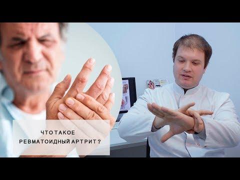 РЕВМАТОИДНЫЙ АРТРИТ L Что это такое? L Симптомы, Пути лечения