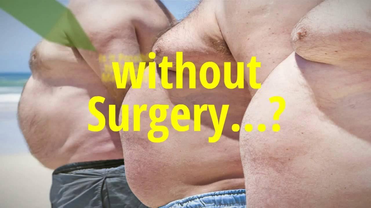 Gynecomastia Sugery Jacksonville Fl Florida Youtube