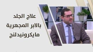 د. عمرو الحمصي - علاج الجلد بالابر المجهرية.. مايكرونيدلنج