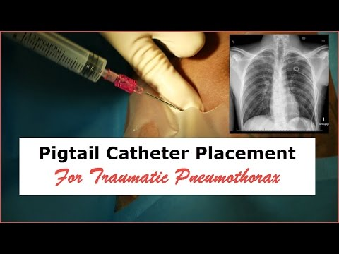 Pigtail Catheter Placement for Traumatic Pneumothorax