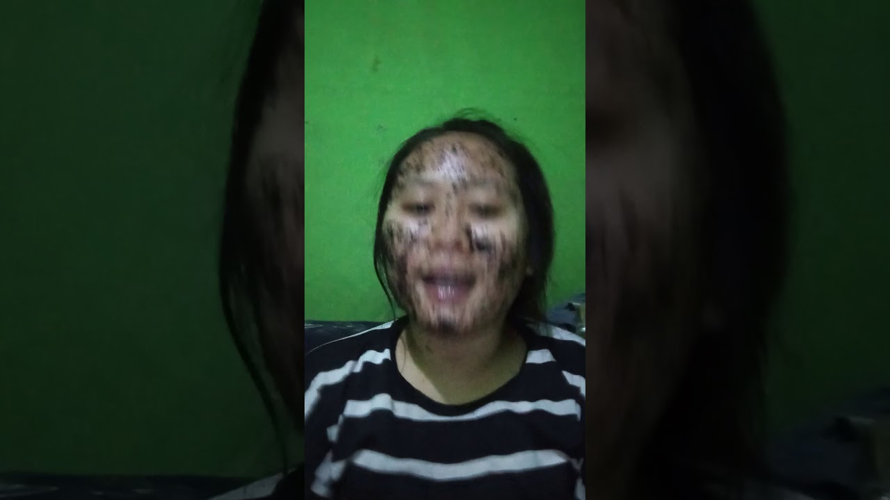 Cara menghilangkan bopeng jerawat dan bruntusan di wajah ...