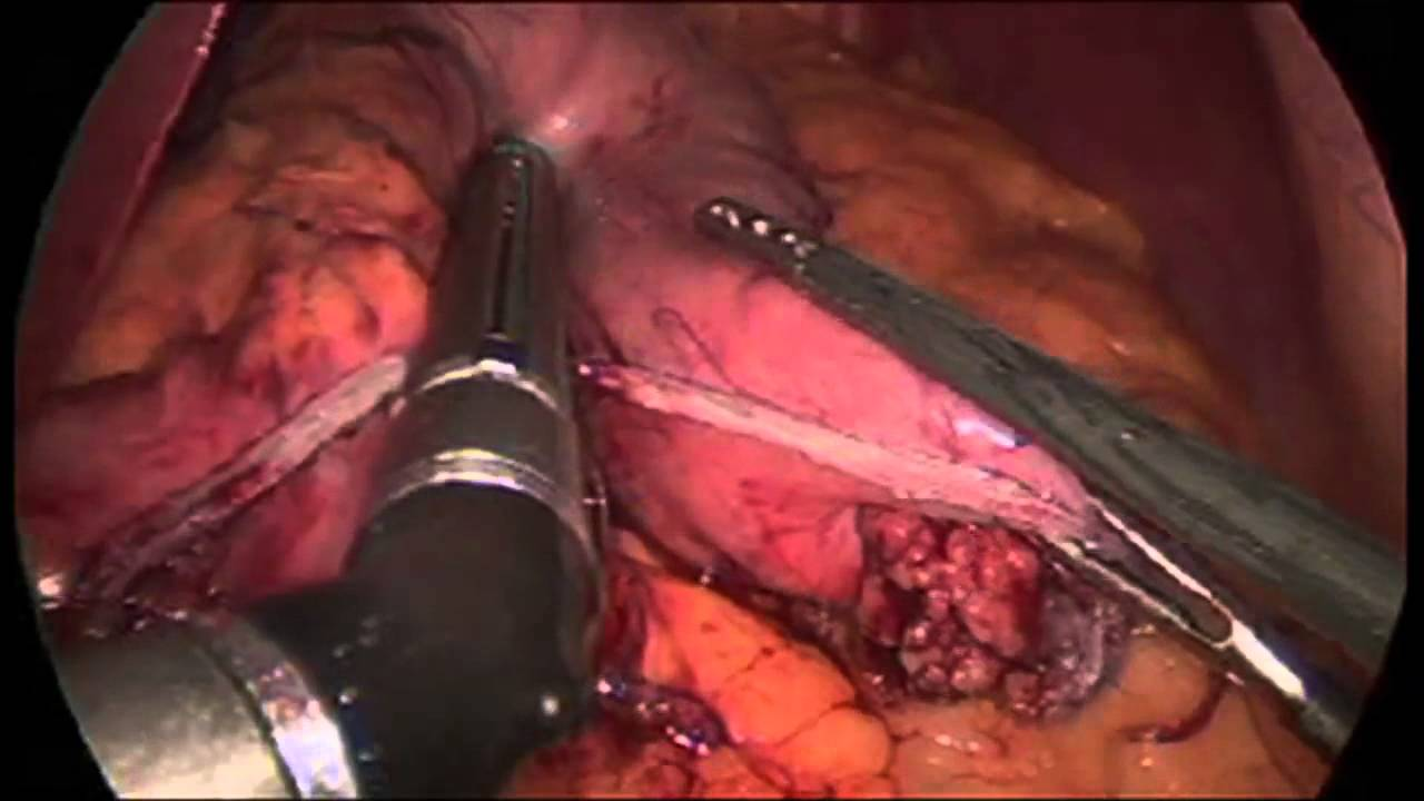 Sleeve Gastrectomy Demonstration Memorial Weight Loss Surgery