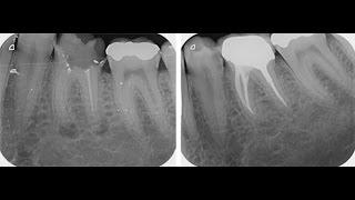 Laser, Zahn und Wurzelbehandlung - bringt das was?