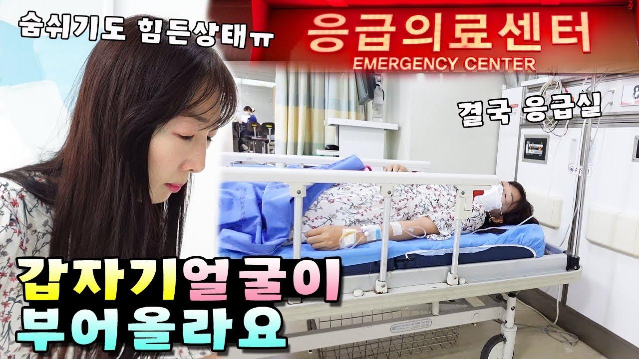 갑자기 순식간에 얼굴이 부어오르더니 숨 쉬는것도 힘들어졌어요 ㅠ 알러지 응급실 가족 일상 브이로그( vlog)ㅣ토깽이네