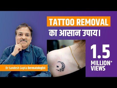 Tattoo removal in Delhi 9990804085