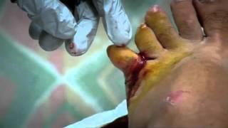 Dislocated Toe - Bizarre ER