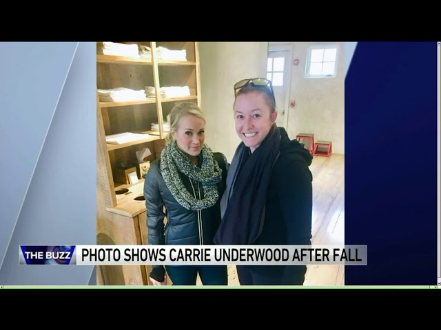 180125074 First Photo Of Carrie Underwood After Her Accident