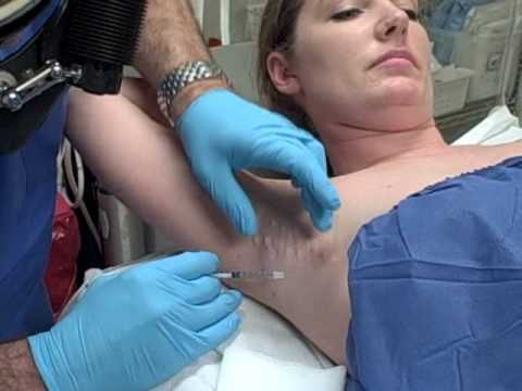 Axillary Armpit Botox for Excess Sweating Hyperhidrosis