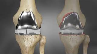 iTotal G2 Knee Implant Fit Animation | Conformis