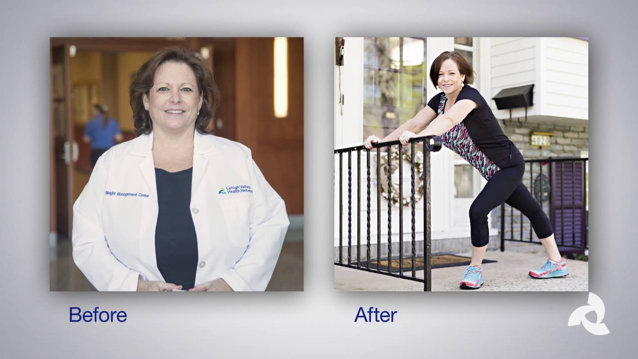 Before and After Weight Loss surgery: Nurse Becomes Patient and Sheds 85 pounds