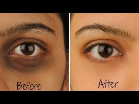 home-remedies-for-dark-circles-under-eyes-fast-how-to-remove-dark-circles-at-home