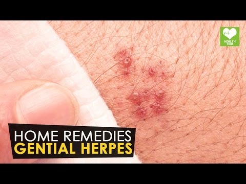 Gential Herpes – Home Remedies | Health Tone Tips