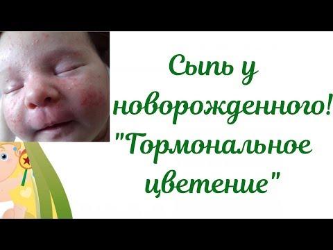 """Акне новорожденных! Сыпь у новорожденного ребенка👶""""Гормональное цветение"""""""