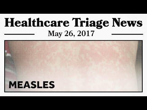 A Measles Outbreak in Minnesota. Nice Work, Anti-vaxxers