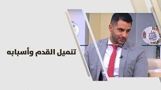 د  أحمد العموري -  تنميل القدم وأسبابه - طب وصحة